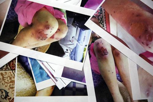 شکنجه یک زن و ۲ دخترش/ آنها ۲۱ روز غذا نخوردند اما هنوز زندهاند+تصاویر