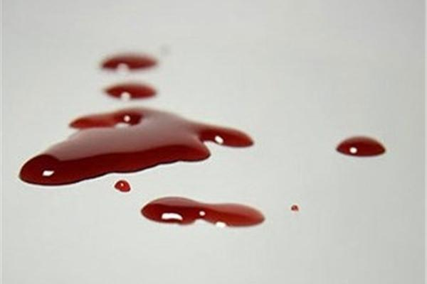 خبرگزاری بامردم - 8 مهمان عروسی را در نهاوند به خاک و خون کشیدند + جزئیات