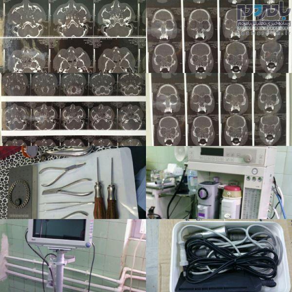 جراحی فک، صورت و گونه برای اولین بار در لاهیجان