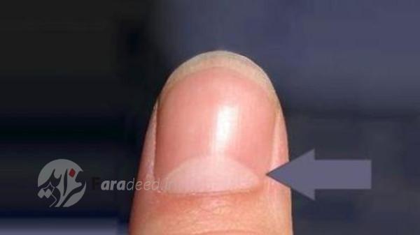 هلال سفید در روی ناخن نشانه چیست؟