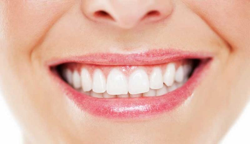 جرم گیری دندان در خانه با روشهای آسان و کمهزینه