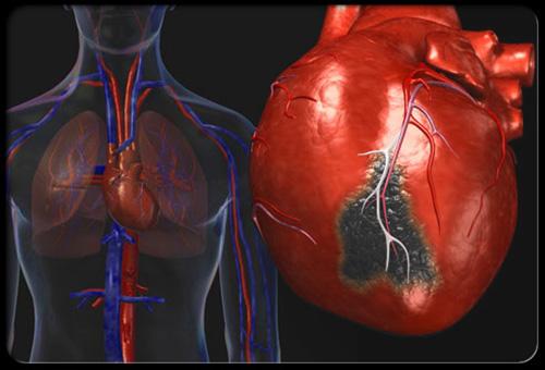 انفجار سلامتی قلب فقط با ۱۰ دقیقه ورزش انفجاری قلب!
