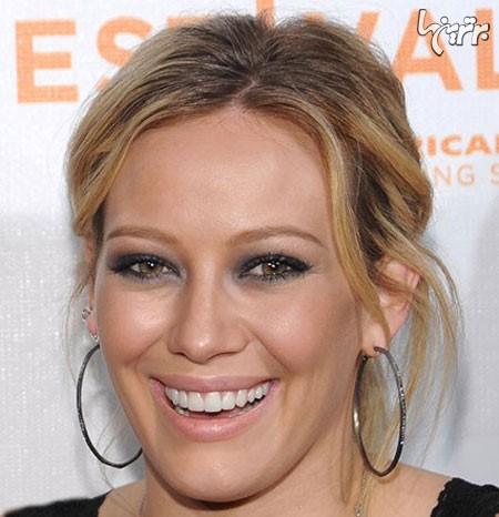 لبخند زیبا چه عوارض جبران ناپذیری دارد؟!+ ماجرای لبخند هالیوودی!