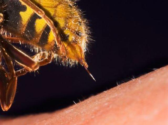 فوت دختر ۱۹ ساله به خاطر نیش زنبور