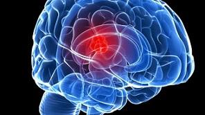 این ۸ علامت تومور مغزی را نادیده نگیرید!