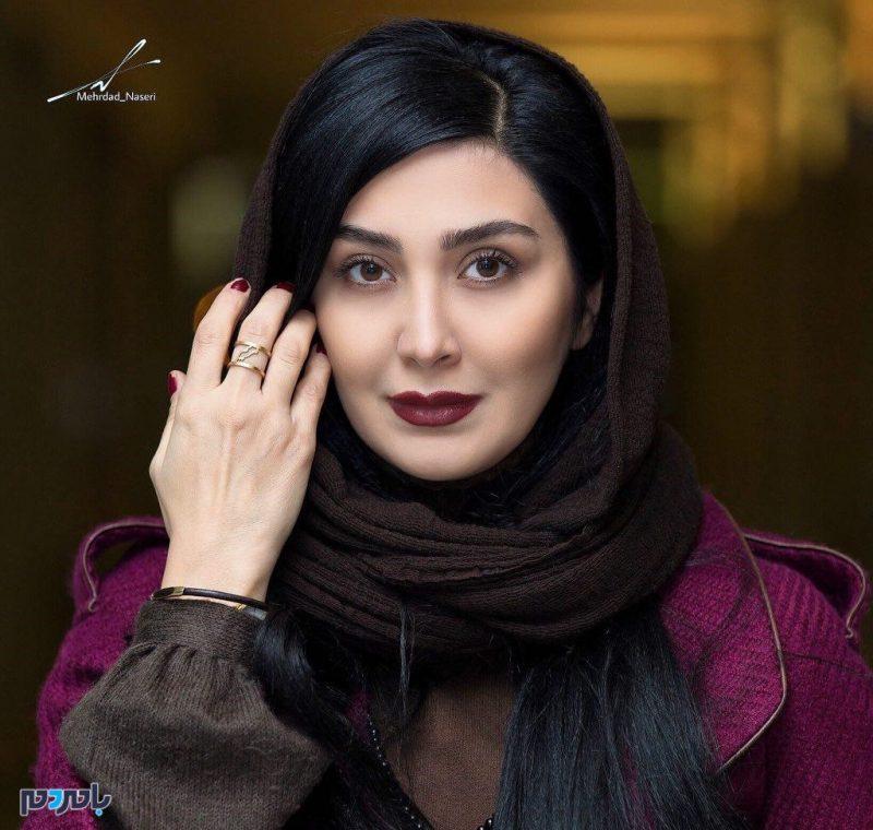 چهره کبود بازیگر زن ایرانی | حمله فیزیکی به مریم معصومی + عکس