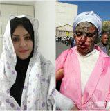 خواستگار بی رحم انگشتان معصومه را برید و روی صورتش اسید ریخت + عکس
