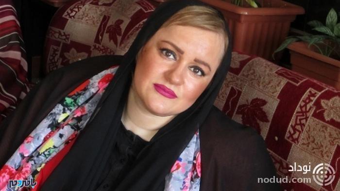 چهره باورنکردنی خانم بازیگر پس از جراحی لاغری عجیب + عکس