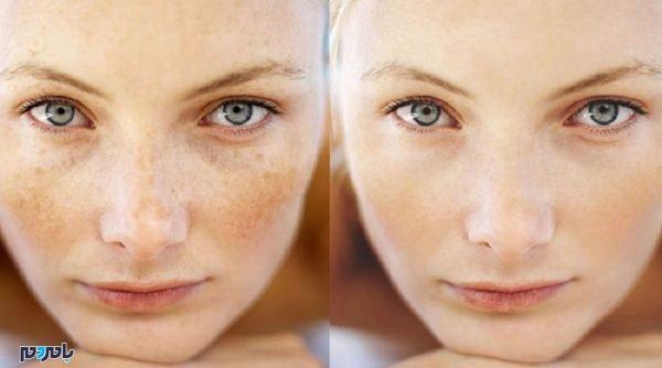 پوست صاف درمان کک و مک 600x334 - درمان خانگی کک و مک صورت