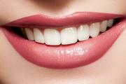 جرم گیری دندان با یک محلول خانگی