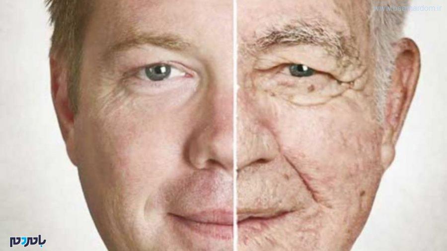 علت ضعف عضلات و پیری پوست و راهکاری مناسب
