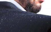 ۸ راهکار سریع برای درمان شوره سر
