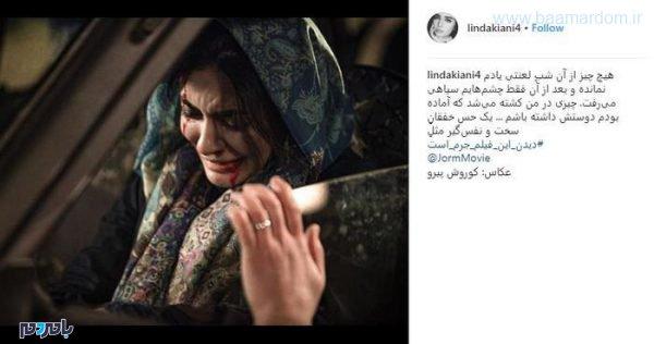 utay0 crop c0 5 0 5 700x369 75 600x316 - صورت زخمی و خونین بانوی هنرپیشه معروف ایرانی + عکس
