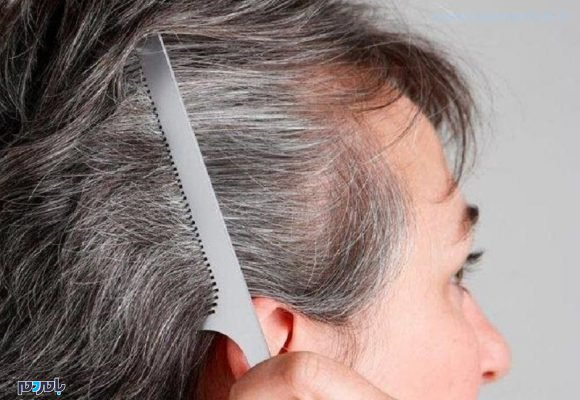 سفید 580x400 - حقایقی در مورد موهای سفید