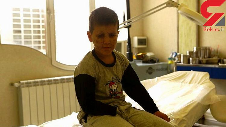 این پسر ۹ ساله کوچکترین جانباز ایران است + عکس