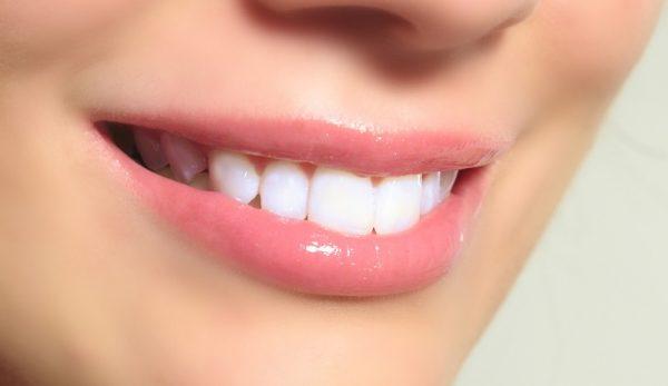 سفید کردن دندان 600x347 - سفید کردن دندان ها در کمتر از سه دقیقه
