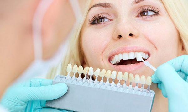 2 2 600x357 - چگونه میتوان دندانپزشک زیبایی مناسب انتخاب کرد؟