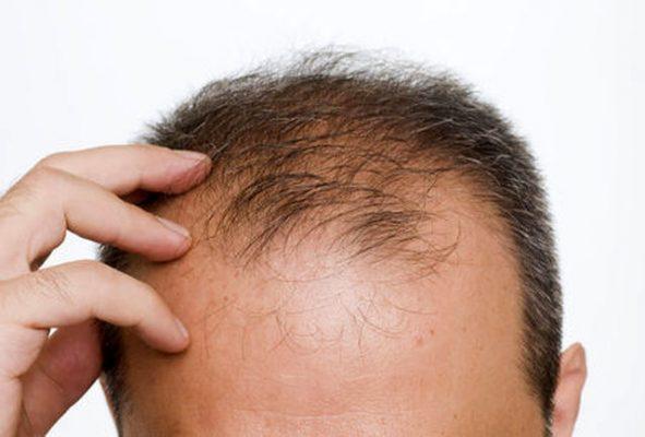 موهای نازک 591x400 - با این روش ارزان موهای نازک خود را درمان کنید!