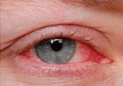 قرمزی چشم و خطراتی که تهدیدتان می کند!