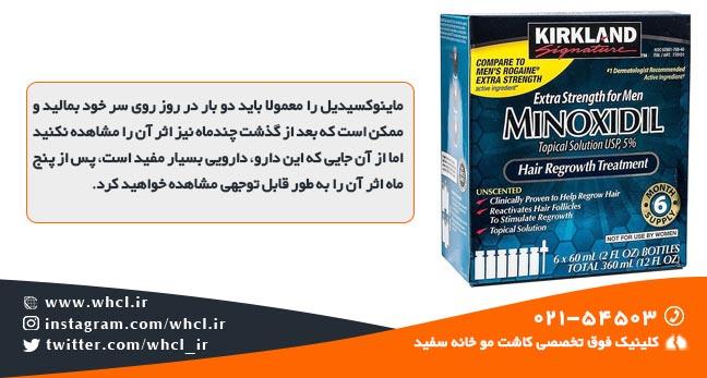 Minoxidil medicine - راههای واقعاً موثر برای درمان و جلوگیری از ریزش مو