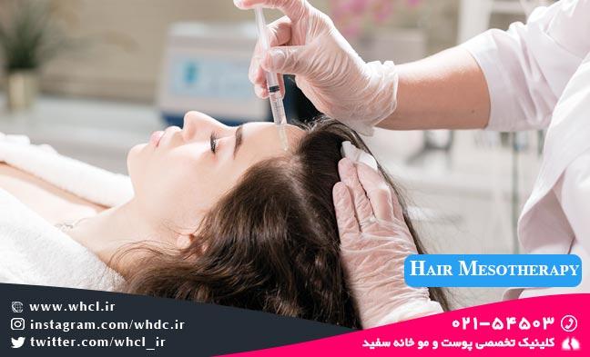 hair mesotheapy - راههای واقعاً موثر برای درمان و جلوگیری از ریزش مو