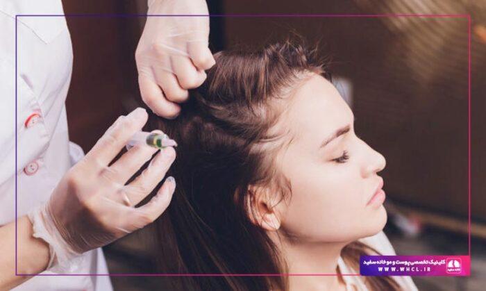 hair mesotherapy 700x419 - راههای واقعاً موثر برای درمان و جلوگیری از ریزش مو