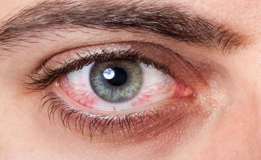 قرمزی چشم - ویروس کووید 19 می تواند سبب نابینایی شود؟
