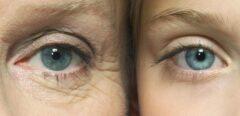 روش هایی برای جوان و زیبا ماندن پوست