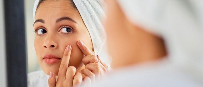 زیبایی صورت جوش - حقیقت مهمی که جوش ها فاش می کنند