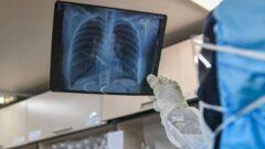 هشدار یک فوق تخصص: پیشروی «درگیری ریه» پس از بهبودی کرونا هم وجود دارد