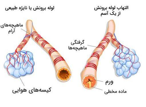 آسم 1 - درمان تضمینی آسم در خانه