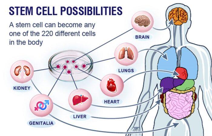 درمان سرطان با سلولهای بنیادی در اوکراین 700x450 - درمان سرطان با سلول های بنیادی در اوکراین   ویزای پزشکی تضمینی